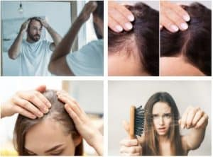 best shampoo for hair loss female, hair loss causes, What is the main reason for hair loss in females?,How can I stop my hair loss?, What type of vitamin deficiency causes hair loss?