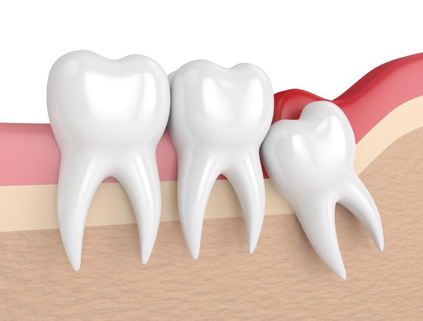 dental procedures cost list