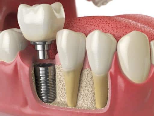dental works pricing