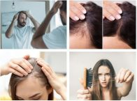 Best Shampoos for Hair Loss in Singapore 2021